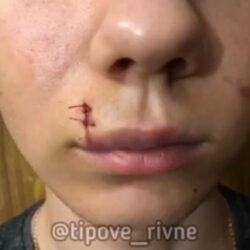 Бійка підлітків у Рівному: рідні побитого хлопця просять відгукнутися (ВІДЕО)